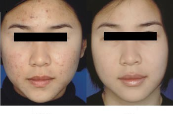 Before and After Photo: Jessner Peel Acne Treatment