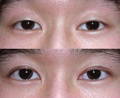 Before and After Photo: Asian Double Eyelid Surgery #2