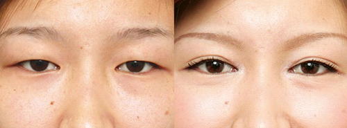 Before and After Photo: Asian Double Eyelid Surgery #3