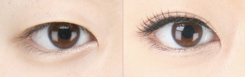Before and After Photo: Asian Double Eyelid Surgery #5