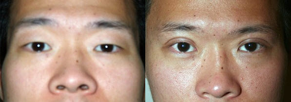 Before and After Photo: Asian Double Eyelid Surgery #6