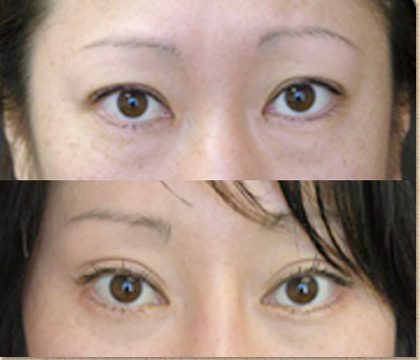 Before and After Photo: Asian Double Eyelid Surgery #7