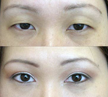 Before and After Photo: Asian Double Eyelid Surgery #8