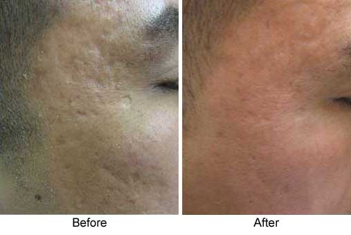 Before and After Photo: Collagen Injections for Acne Scarring