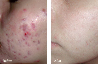 Before and After Photo: MiXto Laser for Acne Scarring