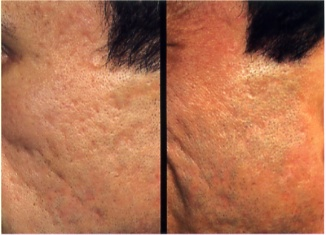 Before and After Photo: Dermal Fillers for Acne Scarring