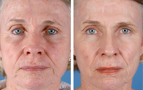 Tretinoin Before After | www.pixshark.com - Images