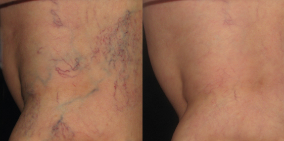 Before and After Photo of Asclera Injections #5