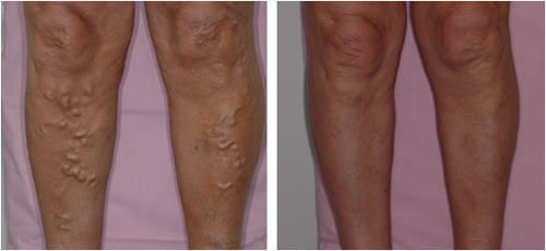 Before and After Varicose Vein Ambulatory Phlebectomy #5