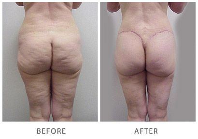 Buttocks Sagging Skin Before and After #1