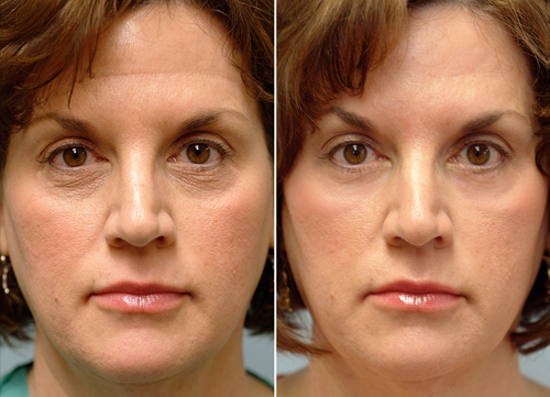 CO2 Laser Before and After Treatment of a Woman #1