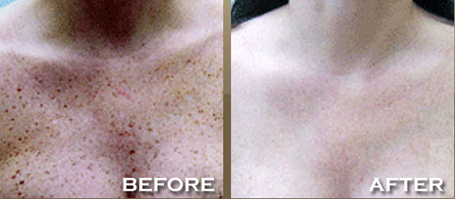 Chest Treatment of Age Spots Before and After Photo #2