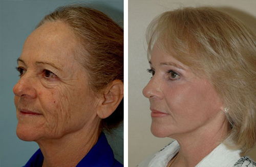 Extreme Success Using CO2 Laser Before and After Photo #5