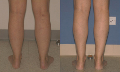 Fat Liposuction of Ankles Before and After #4