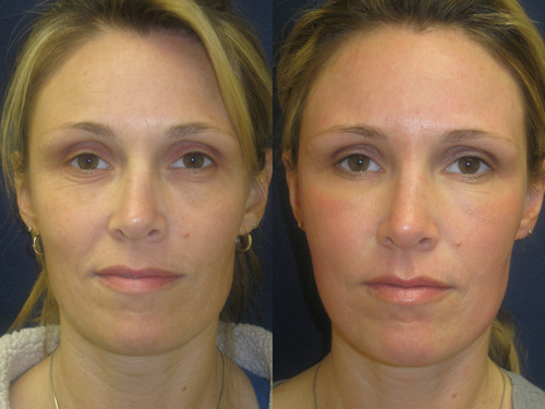 Before and After Photo: ActiveFX to Rejuvenate the Skin