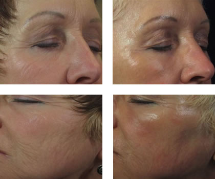 Fixing Wrinkles with Affirm Laser Before and After #2