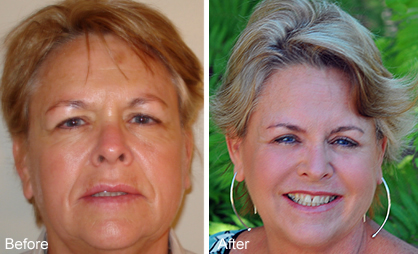 Before and After Photo: ActiveFX for Skin Rejuvenation
