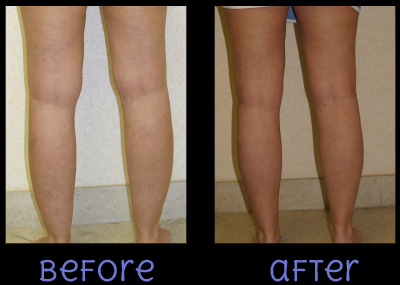 Liposuction of the Ankle Before and After Photo #2