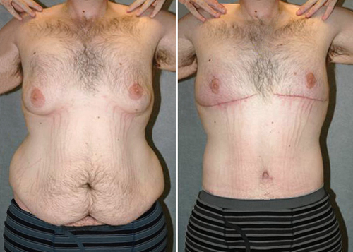 Loose Skin Fixed with a Body Lift Before and After Photo #6