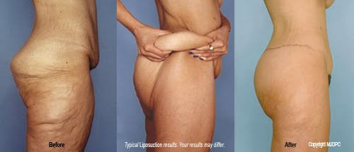 Love Handles and Thighs Loose Skin Before and After #2