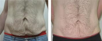 Lower Abs Loose Skin Before and After Surgery #8