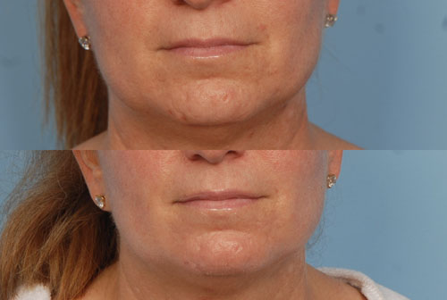 Before and After Photo: ActiveFX for Lower Face Wrinkles