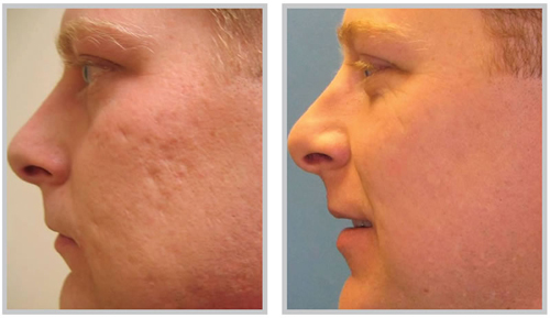 Before and After Photo: Juvederm for Acne Scarring