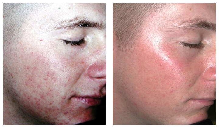 Before and After Photo: Perlane for Acne Scarring