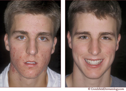 Before and After Photo: Ematrix Acne Treatment