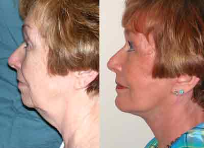 Neck and Face Saggy Loose Skin Before and After #4