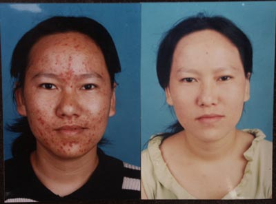 Before and After Photo: Microdermabrasion Acne Treatment