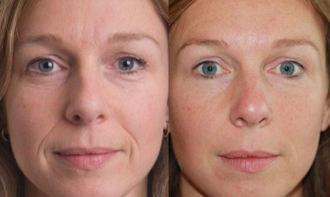 Permanent ArteFill Before and After Photo #4