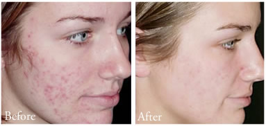 Before and After Photo: Affirm Laser Acne Treatment