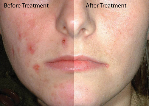 Before and After Photo: Fraxel Laser Acne Treatment