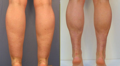 Prominent New Ankles After Liposuction Before and After Picture #5