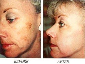 Removal of Age Spots Before and After #10