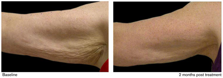 Saggy Arm Skin Before and After Photo #3
