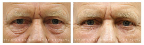 Saggy Eyelid Skin Before and After Picture #10
