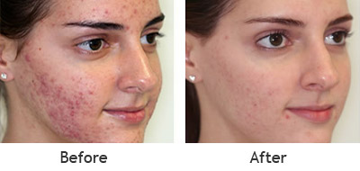 Before and After Photo: Laser Genesis Acne Treatment