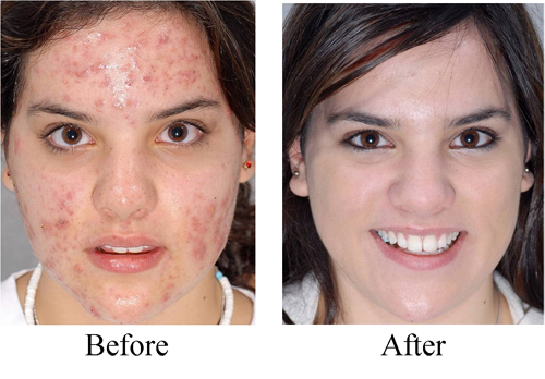 Severe Before and After Acne Treatment of Lady #6