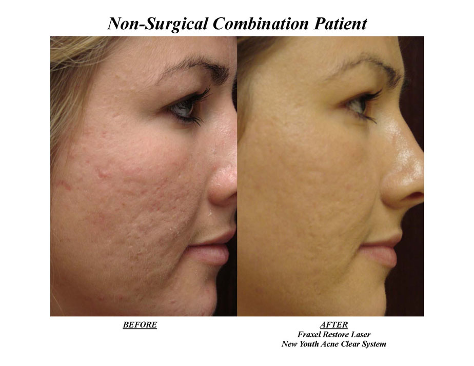 Before and After Photo: Fraxel Laser for Acne Scarring