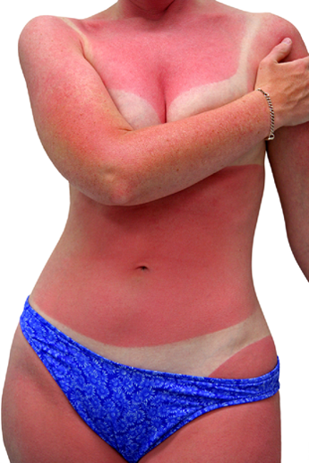 Before and After Photo: Sunburn #3