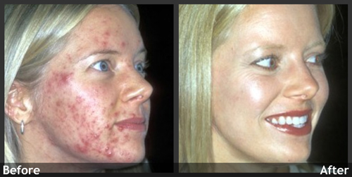 Before and After Photo: SmartXide Acne Treatment