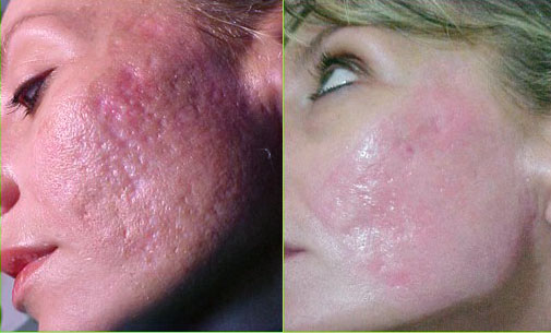 Before and After Photo: ArteFill for Acne Scarring