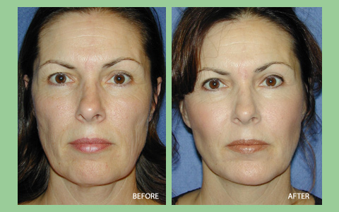 Before and After Photo: Bio-Alcamid for Higher Cheekbones