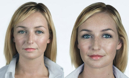 Before and After Photo: Bio-Alcamid for Lip Augmentation