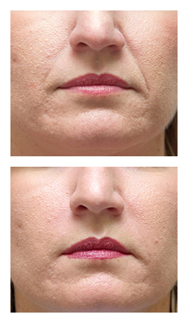 Before and After Photo: Bio-Alcamid for Nasolabial Folds