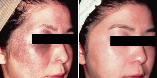 Before and After Photo: Mongolian Spots Birthmark Removal