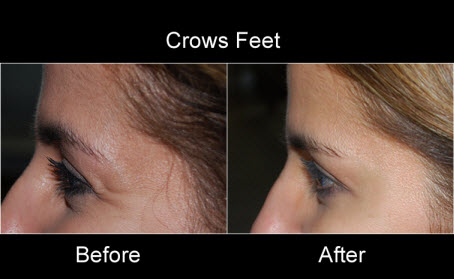 Before and After Photo: Botox for Crow's Feet