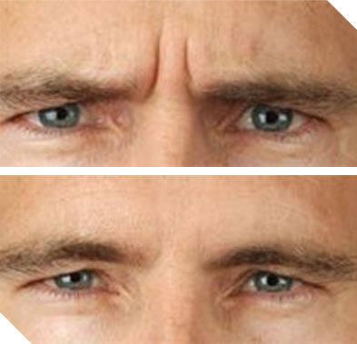 Before and After Photo 2: Botox for Frown Lines